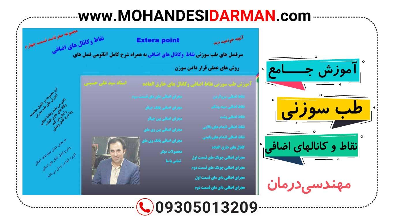 دانلود آموزش طب سوزنی نقاط و کانال های اضافی Extera point(استاد علی حسینی)