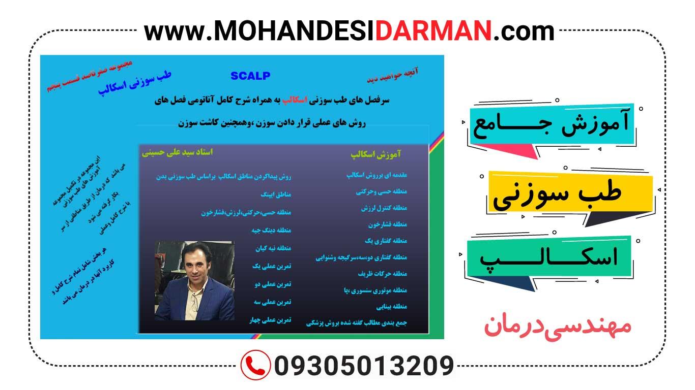 دانلود آموزش جامع طب سوزنی اسکالپ(استاد علی حسینی)
